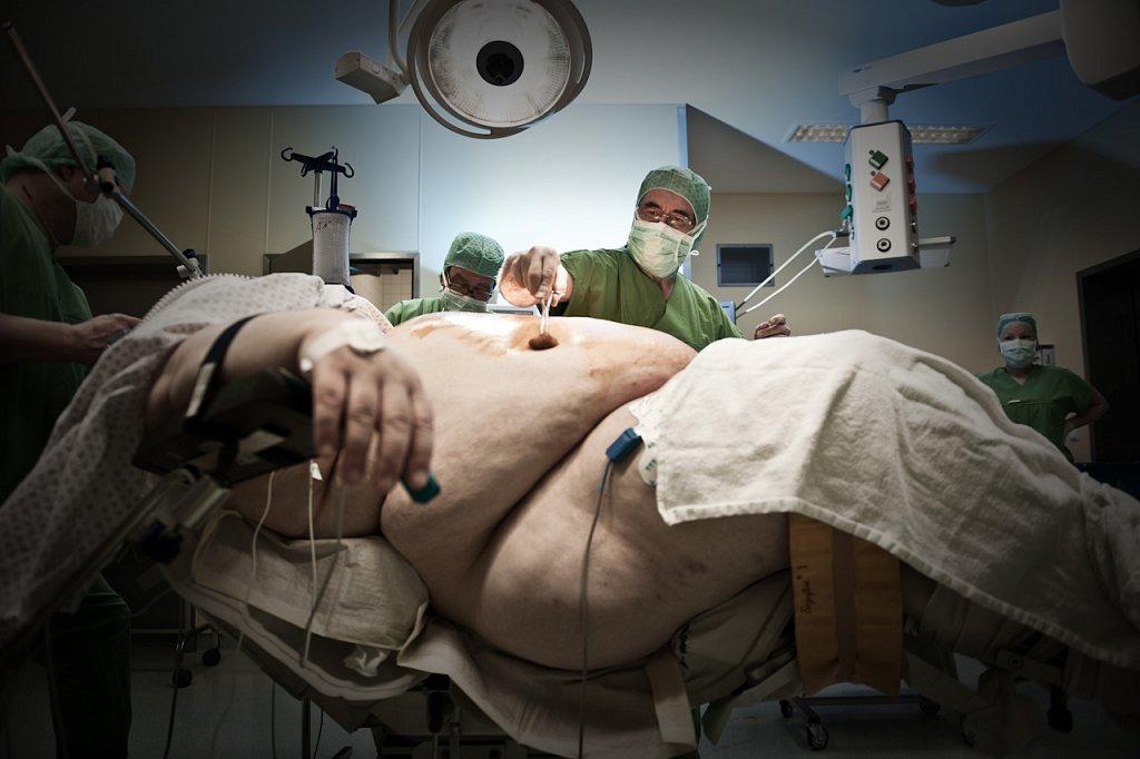 Adipositaschirurgie-Solcher-1.jpg