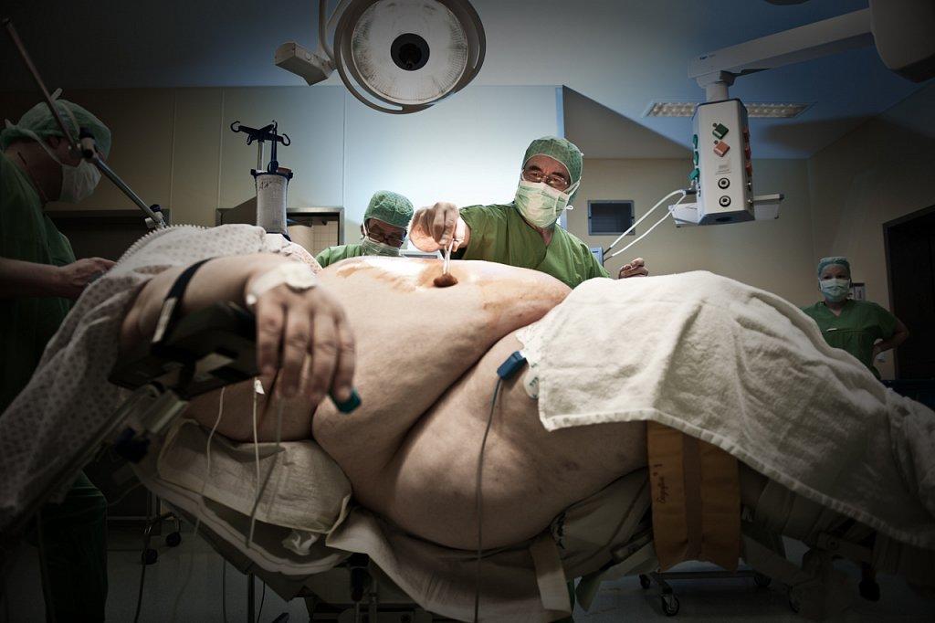 Bariatrische Chirurgie